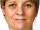 Tratamiento lifting facial sin cirugía. Reafirmante.